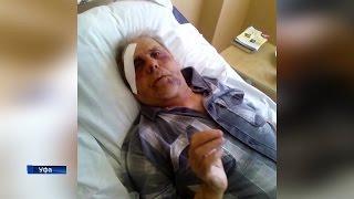 Ветерану, которого избили в уфимском санатории, удалось запомнить обидчика