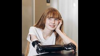 Как живет девочка с кибер-рукой | Ufa1.ru