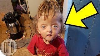 В России Девочку Отказались Принимать в Детсад Из за Того, ЧТО ОНА СТРАШНАЯ!