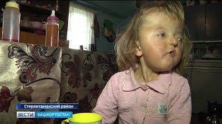 Власти Башкирии помогут двухлетней девочке с деформированным лицом и сросшимися пальцами